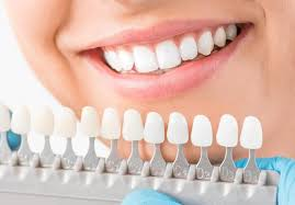 Important Questions for Your Cosmetic Dentist